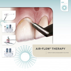 Ultrasonic Scaling & Air-Flow Therapy