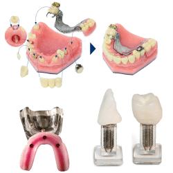 Implant & Overdenture Models